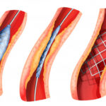 What is the Value of Absorbable Heart Stent Market in 2021